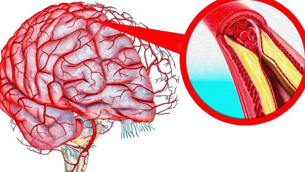 Как они влияют на артериальное давление