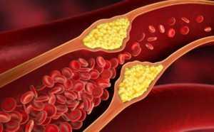 Сосуды при диабете 2-го типа